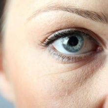 Отеки под глазами: причины, эффективные способы убрать мешки под глазами в домашних условиях быстро и надолго