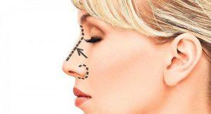 корректировака носа
