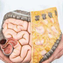 Очищение кишечника: клизмами, соленой водой и упражнениями (Шанк Пракшалана), препаратами, способы самоочищения: диеты и голодание