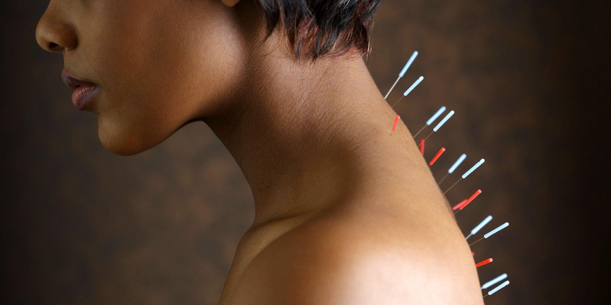 igloukalyvanie спины