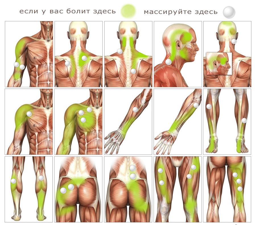 мышцы и боль