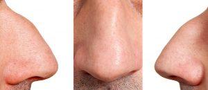 орлиный нос